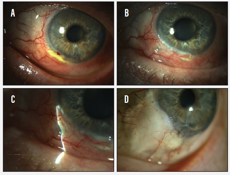 <p>Figure 2. Examination revealed a crescent-shaped peripheral ulcer along the patient's limbus (A). Corneal neovascularization and keratitis were noted with increasing scleral inflammation (B) and focal stromal necrosis (C). A conjunctival patch graft of the small perforation can be seen near the focal stromal melt (D).</p>