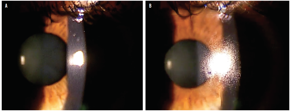 <p>Figure. The surface of a contact lens immediately after a blink (A). About 4 seconds after the blink tears can be seen beading up on the lens over the dry surface (B).</p>