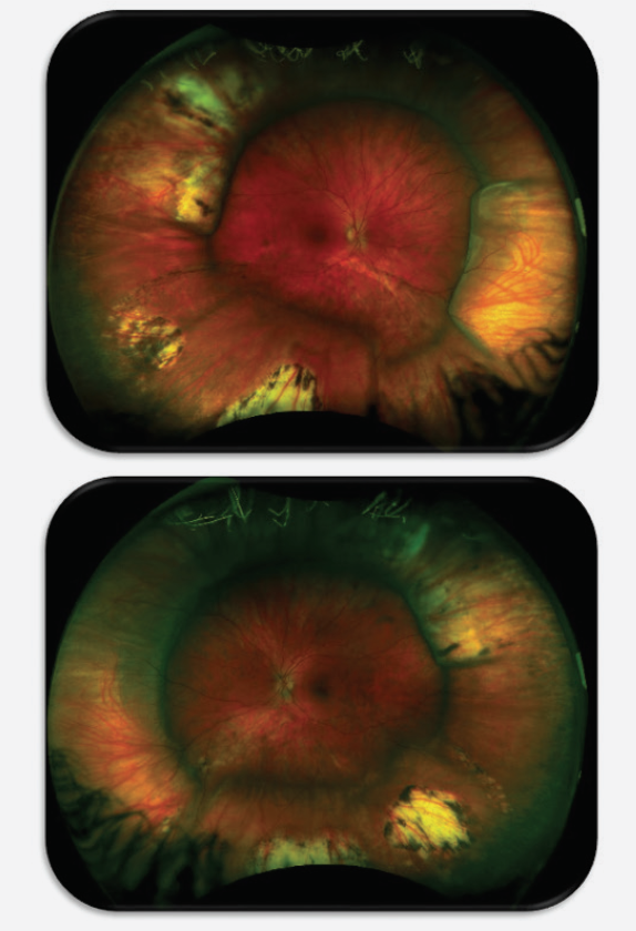 <p>Figure. A fundus image (Optos) shows a 33-year-old patient with myopia of-13.00 D who had two scleral buckle procedures performed at age 2 years.</p>