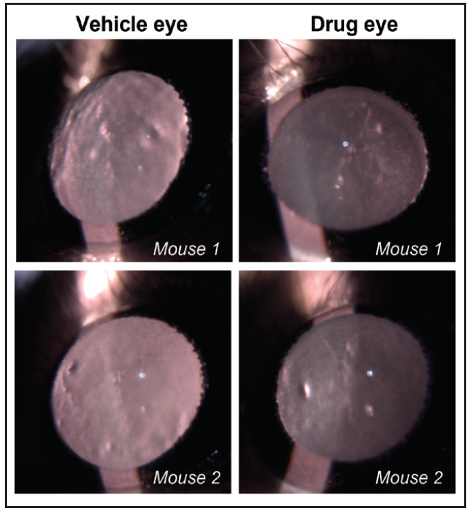 <p>Figure. Representative slit-lamp images from aged wild-type mouse lenses show the extent of opacity treated with vehicle (left) or drug (right). Mice were treated topically with the drug in one eye and vehicle in the contralateral eye three times per week for 2 weeks. Slit-lamp examinations were performed on conscious, live mice. Mouse 1 and 2 were treated with VP1-001.<br /> (Courtesy of Usha Andley, PhD, FARVO)</p>