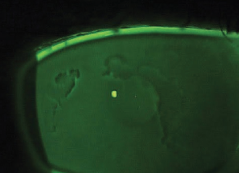 <p>Figure 1. Areas of negative staining seen on slit-lamp examination reveal EBMD.</p>