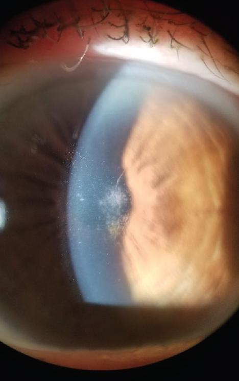 <p>Figure 2. Avellino corneal dystrophy.</p>