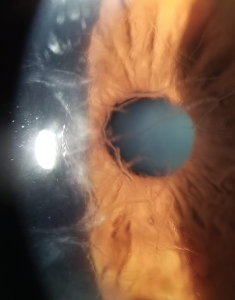<p>Figure 3. Branching refractile lines in the anterior central stroma of patients with lattice corneal dystrophy, as shown here, affect visual acuity.</p>