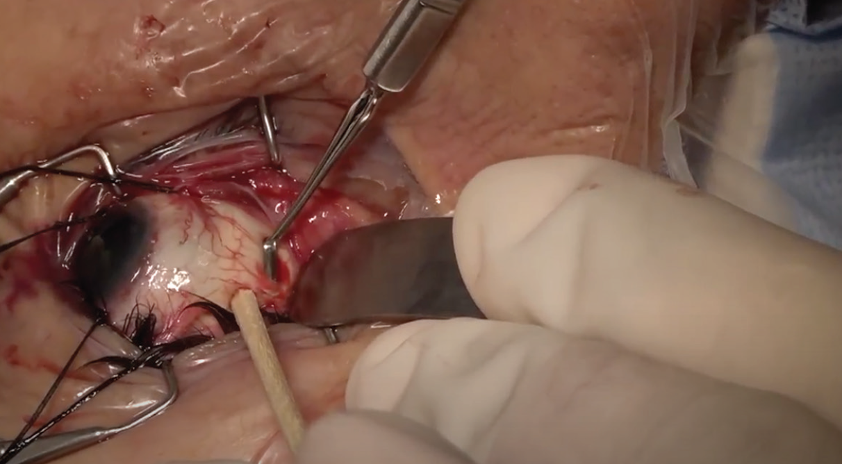 <p>Figure 2. Use of belt loops for securing an encircling band during scleral buckle surgery is a preference of Dr. Kuriyan.</p>