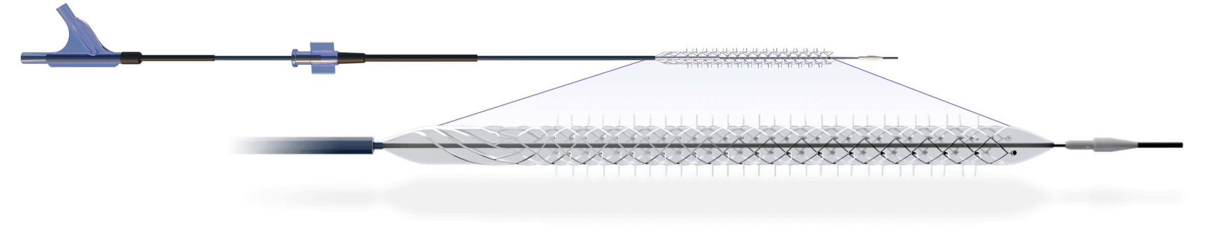 Temporary Spur stent system (Reflow Medical, Inc.)