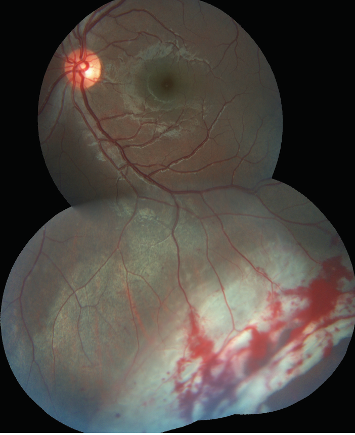 <p>Figure 1. Retinal tears with subretinal fluid and commotio retinae located in the inferior and temporal quadrant extending up to the equator.</p>