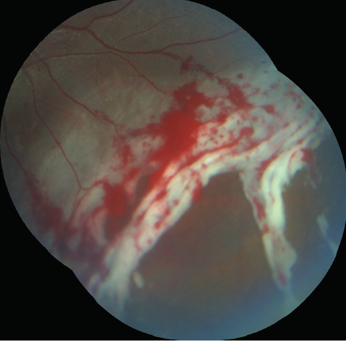 <p>Figure 2. Close-up image showing the irregular and ragged tears with fresh retinal and preretinal hemorrhages.</p>