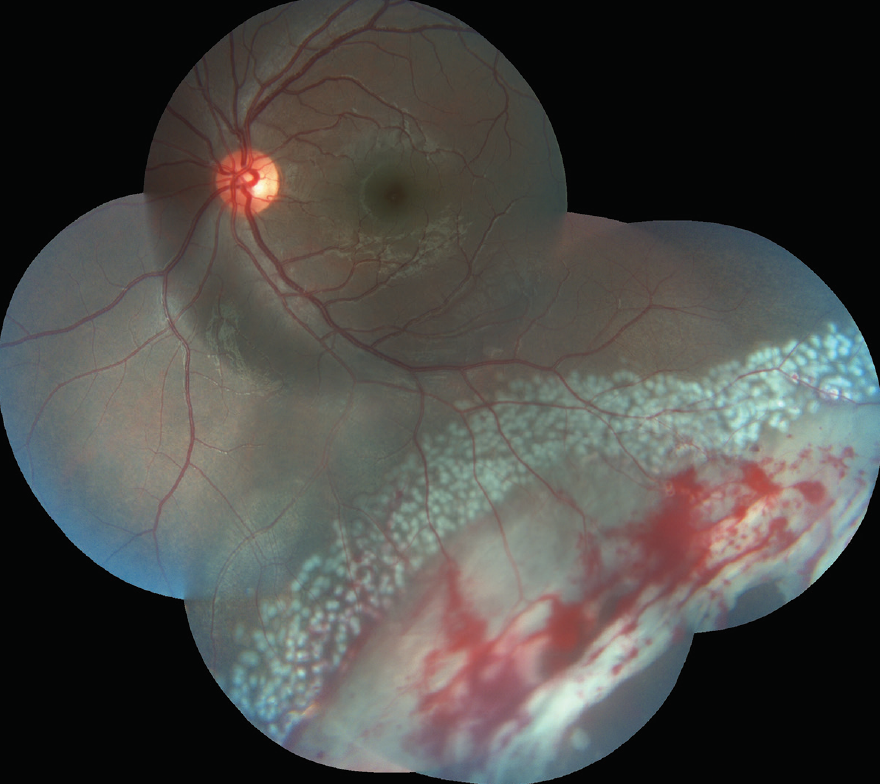 <p>Figure 3. Post-laser delimitation images showing the aggressive rows of contiguous laser around the tears and subretinal fluid.</p>