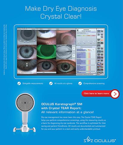 Oculus Keratograph (Mobile)