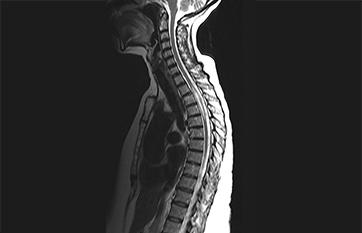 Case Report: Longitudinally Extensive Transverse Myelitis image
