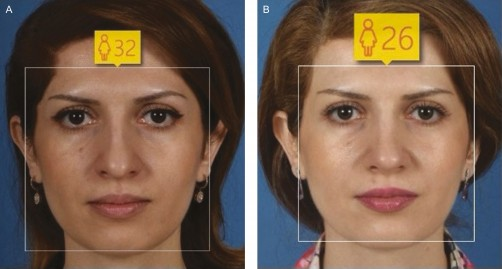 AI Study: Rhinoplasty Makes Women Look Up to Three Years Younger image