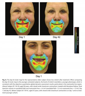Dermal Fillers Restore Youthful Facial Movement Too image